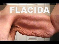 Los médicos cirujanos están aterrados con esta receta que elimina la piel arrugada y flácida - YouTube