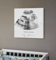 SONOGRAM WALL ART!! A Beautiful idea for a Baby Room!! what do you think? Get them here: http://rstyle.me/n/cc8rx6b6dpf