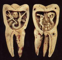 Signification rêve de dents qui cassent
