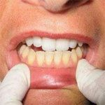 The fitness of your body is dependent on having strong and white teeth. Bad digestive system influences your teeth, and if you suffer from dyspepsia or constipation or appetite issues, your teeth gets affected. Home Remedies, Natural Remedies, Tartar Removal, Healthy Soda, Plaque Removal, Bad Breath, Alternative Medicine, How To Stay Healthy, Baking Soda