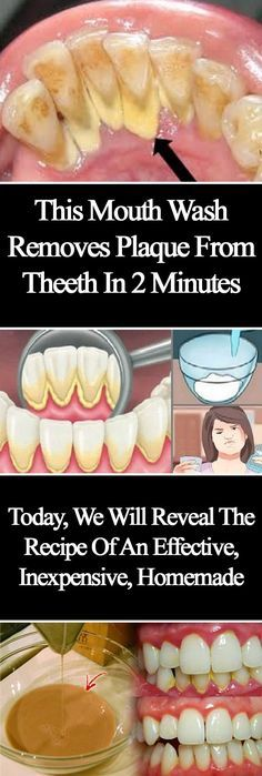 This+Mouthwash+Removes+Plaque+From+Teeth+In+2+Minutes