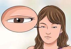 Ti Trema Un Occhio? Allora Devi Assolutamente Leggere Queste Informazioni