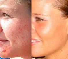 Ben jij de oneffenheden ook steeds aan het verbergen? Met de nieuwste systemen en de juiste voorbereiding, zorgen we ervoor dat je acne-plekken een intensieve aanpak krijgen en niet verder verspreiden. http://www.lasercentrum-limburg.nl/