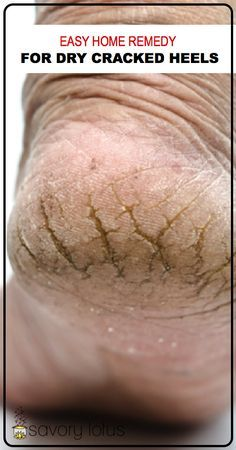 Easy Home Remedy for Dry Cracked Heels - www.savorylotus.com: