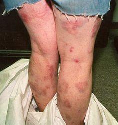crystal meth symptoms | Meth Effects