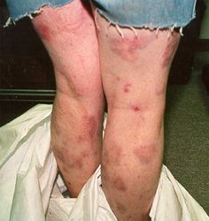 Meth mites...the itching under the skin from meth