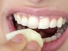 Dental whitening treatment easy teeth whitening,local teeth whitening mobile teeth whitening,opalescence whitening teeth whitening options at dentist. Natural Remedies, Home Remedies, Cute Diy Projects, Teeth Care, Hair Loss Remedies, White Teeth, Dental Care, Dental Hygiene, Teeth Whitening