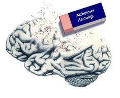 5 Soruda Alzheimer Testi! Mutlaka Deneyin..