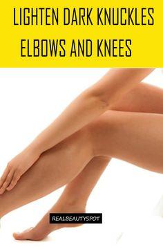 treat-dark-knuckles-elbows-and-knees
