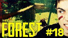 KOMPLEKS PLATFORM! - The Forest #18
