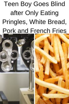Teen Boy Goes Blind after Only Eating Pringles, White Bread, Pork and French Fries Fussy Eaters, White Bread, French Fries, Everything, Pork, French Food, Recipes, Blind, Teen