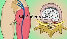 Prírodný domáci liek na odstránenie bolesti sedacieho nervu. Zaručene funguje!