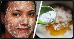 Hyperpigmentation is aharmless skin condition which causes dark patches on the skin than the normal surrounding skin. It occurs when an excess of melanin forms deposits. Although, it cannot affect yo
