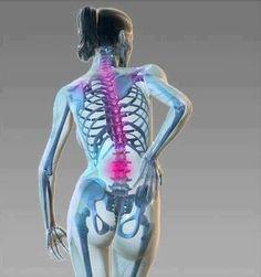 TU SALUD: Como aliviar el dolor de espalda
