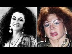 Top Ten Worst Plastic Surgery Disasters. Botched Plastic Surgery, Bad Plastic Surgeries, Plastic Surgery Gone Wrong, Celebrity Plastic Surgery, Worst Plastic Surgery, Lady Gaga Nose, Jackie Stallone, Plastic Surgery Pictures, Brow Lift