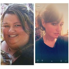 Gastric bypass RNY before and after