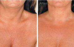 Reduce y evita las arrugas en el cuello con estos sencillos trucos