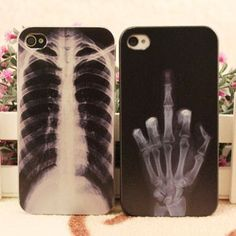 X-ray Skeleton Punk Iphone Cases For Iphone 4/4s/5 | Creative Iphone Cases | Accessories- ByGoods.Com