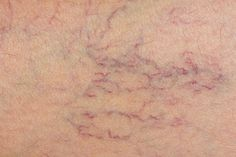 Natural Remedies For Varicose Veins A study led by researchers from the University of Aberdeen which compared different treatments for varicose veins has found that laser treatment is the preferred treatment. Varicose Vein Remedy, Varicose Veins Treatment, Home Treatment, Home Remedies, Natural Remedies, Poor Circulation, Improve Circulation, Restless Leg Syndrome, Natural Treatments