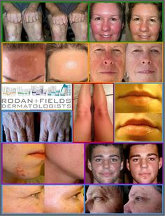 Before and After Pictures of Rodan and Fields product users www.LisasSkinCare.myrandf.biz Www.LisasSkinCare.myrandf.com Www.Facebook.com/LisasSkinCare Skin care products