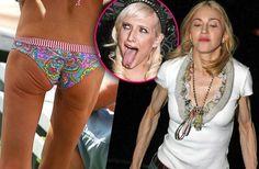 Extreme Celebrity Body Flaws | Radar Online
