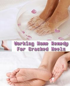 SUMMER - Natural Working Home Remedies For Cracked Heels ~ remediez