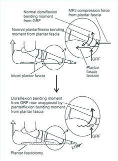 Diagram Of Foot Pain   75 Best Plantar Fasciitis Heel Spurs Images In 2019 Foot Pain