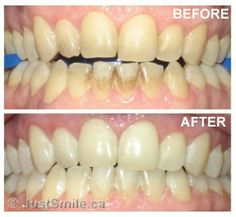 extrinsic stain | What is laser teeth whitening? | Laser Teeth Whitening in Toronto ...