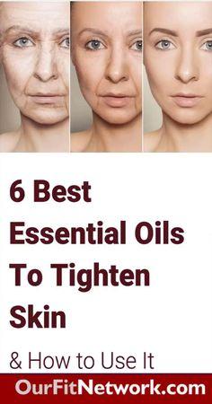 Brown Spots On Skin, Skin Spots, Essential Oils For Face, Gewichtsverlust Motivation, Face Wrinkles, Loose Skin, Sagging Skin, Saggy Eyes, Skin Tightening