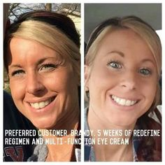 Rodan+Fields offers INCREDIBLE results guaranteed or your money back! Are YOU ready for a change yet? It is well worth the investment to have GREAT skin! Message me for discount options! ksnodgrass1.myrandf.com