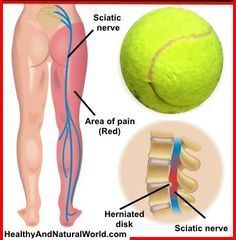 Acupuncture Pain Relief Learn how to do tennis ball therapy which helps to relieve sore muscles and muscle tension, and can relieve sciatica and back pain. - You only need a tennis ball to relieve your sciatic pain and back pain (VIDEO) Sciatica Pain Relief, Sciatic Pain, Back Pain Relief, How To Relieve Sciatica, Treating Sciatica, Sciatica Massage, Sciatica Symptoms, Sciatica Exercises, Massage Therapy
