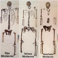 "The skeletal remains of the Grand Dychesses Olga,Tatiana and Anastasia Nikolaevna Romanova of Russia.   ""AL"""