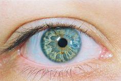 Heterochromia 2