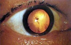 Fogonazos: Hiroshima, the pictures they didnt want us to see. This photograph shows an eyeball of an A-bomb victim who got an atomic bomb cataract. There is opacity near the center of the eyeball. Nuclear Bomb, Nuclear War, Nuclear Energy, Nagasaki, Hiroshima Japan, Chuck Norris, Barack Obama, Hiroshima Bombing, Brazil