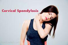 Cervical Spondylosis? Symptoms, Causes, Treatment & Exercises