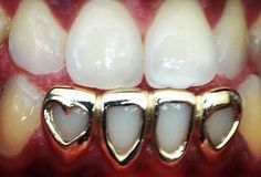 Jewelry OFF! 4 Gold Cap Open face frame with Heart shape Open Face Grillz, Gold Teeth Grillz, Gangsta Grillz, Girl Grillz, Gold Slugs, Diamond Grillz, Tooth Gem, Gold Grill, Grills Teeth