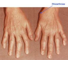 Artroza degetului mare - simptome si tratament Radiology