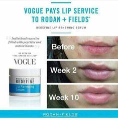 Tired of chronically dry/chapped lips, REDEFINE lip renewing serum can change that!!  https://rebeccadack.myrandf.com