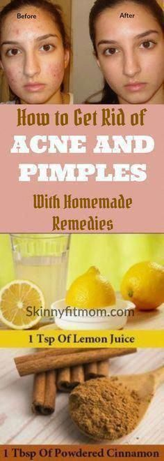 Best Way To Get Rid Of Acne Overnight - Find Out How To Remove Pimples Naturally Overnight! Natural Remedies For Rosacea, Home Remedies For Pimples, Rosacea Remedies, Natural Oils For Skin, Natural Skin Care, Aloe Vera, Brown Spots On Skin, Dark Spots, Back Acne Treatment