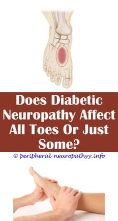 5 Active Tips: Neuropathy Spreading Up Legs foods that affect neuropathy.Icd 10 For Diabetes With Peripheral Neuropathy vasculitic neuropathy treatment.Icd 10 For Diabetes With Peripheral Neuropathy. Peripheral Nervous System, Peripheral Nerve, Peripheral Neuropathy, Nerve Fiber, Nerve Pain, Chronic Pain, Fibromyalgia, Neuropathic Pain