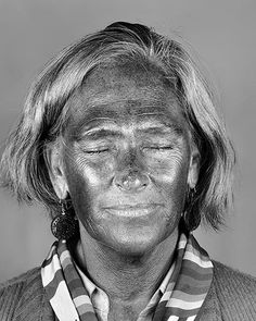 Ultraviolet Beauties is a series of works by artistCara Phillips that shows pigmentation beneath the skins' surface with ultraviolet photography. By using this technique, which simulates a dermatological test,we are able to see the invisible damage caused by the sun.