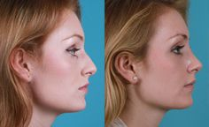 The Importance of #Rhinoplasty Before & After Photos. -Via Jeffrey Rawnsley #NoseJob