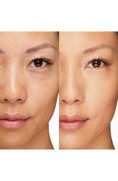 #WartsOnHands Brown Spots On Skin, Skin Spots, Brown Skin, Dark Skin, Dark Spots, Dark Brown, Nordstrom, Concealer, Full Coverage Makeup