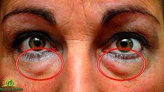 Alcune persone hanno più probabilità di altre di avere i cerchi scuri o gonfiore sotto occhi. Generalmente, affaticamento, mancanza di sonno o stress favoriscono la comparsa di questi segni sotto gli occhi.Tuttavia, nel tempo, le borse sotto occhi cominciano a immagazzinare il grasso, fluido, e si verifica una infiammazione. A sua volta, la colorazione delle occhiaie si accentua e diventa più evidente. Altri fattori che possono predisporre il suo sviluppo sono fattori genetici, allergie, gli…