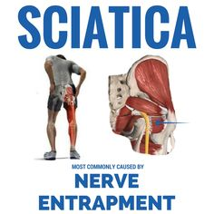 Sciatica is most commonly caused by adhesion gluing down the nerve. It's often misdiagnosed as a bulging or herniated disc, however this is the case less than 5% of the time. #colorado #glenwoodsprings #aspen #vail #snowmass #carbondale #basalt #newcastle