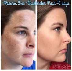 """""""I am SO thankful that I said YES to Rodan + Fields 3 1/2 months ago!!! Before Rodan + Fields my skin was uneven, blotchy, dull, and I dealt with occasional breakouts. Now my skin is soft, smooth, even toned, and I haven't had a breakout in months (even with the crazy postpartum hormones)! My skin has never looked or felt better in my entire life!!"""" ~"""