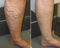 Do you have spider veins or varicose veins? Spider veins , also known as telangiactasias, are clusters of small red veins that lie just below the skin. Book an appointment with Dr. Nguyen and get the best treatment. Varicose Vein Removal, Varicose Veins Treatment, Radiofrequency Ablation, Spider Vein Treatment, Aspirin, Acne Solutions, Change, Blood Vessels, Long Island