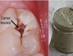 Curar gengivite e clarear os dentes com esta Pasta de dentes caseira! - Receitas e Dicas Rápidas