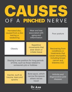 Pinched nerve causes - Dr. Axe #health #holistic #natural