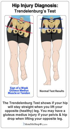 Your hips should be at the same level and they may also look at the results of something called the 'Trendelenburg's Test'. This test is done by standing on one leg and allowing the pelvis to drop on the opposite side while lifting your opposite (healthy) leg/hip.  #MendMeShop #AidYourTendon #GluteusMediusTendonitis http://www.aidyourtendon.com/tendinitis-injuries/hip-thigh-tendonitis/gluteus-medius-tendonitis.php